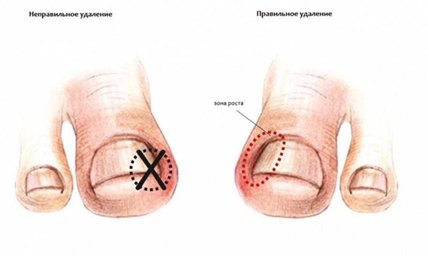Лечение грибка на ногтях ног борной кислотой